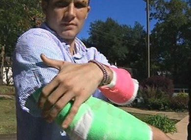 Gay Bashing Is Wrong At Any Age! Burke Benett Speaks Out at Age 26 After Being Beaten in Texas