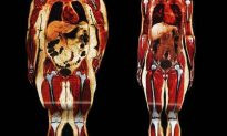 Next Time Someone Says They're Big Boned Not Fat, Show Them This