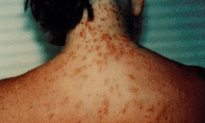 Out Breaks Of Sea Lice On Florida Beaches